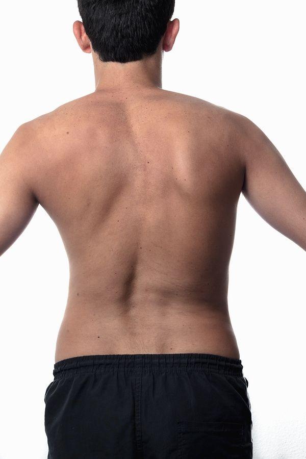 skolioza - boczne skrzywienie