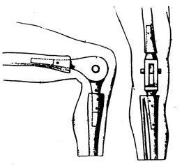 Gluck joint