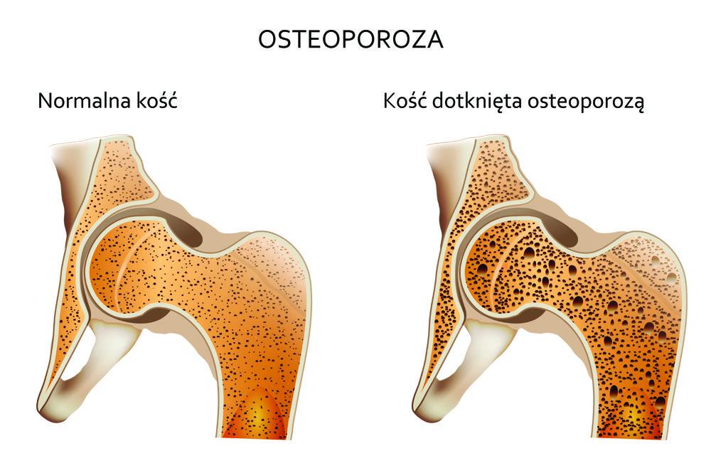 kość z osteoporozą