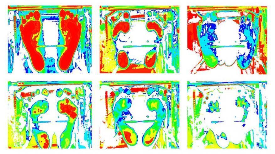 obraz badania komputerowego stopy - podoskop