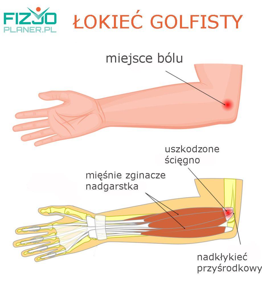łokieć golfisty-anatomia