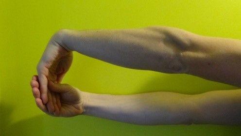 rozciąganie mięśni prostowników nadgarstka
