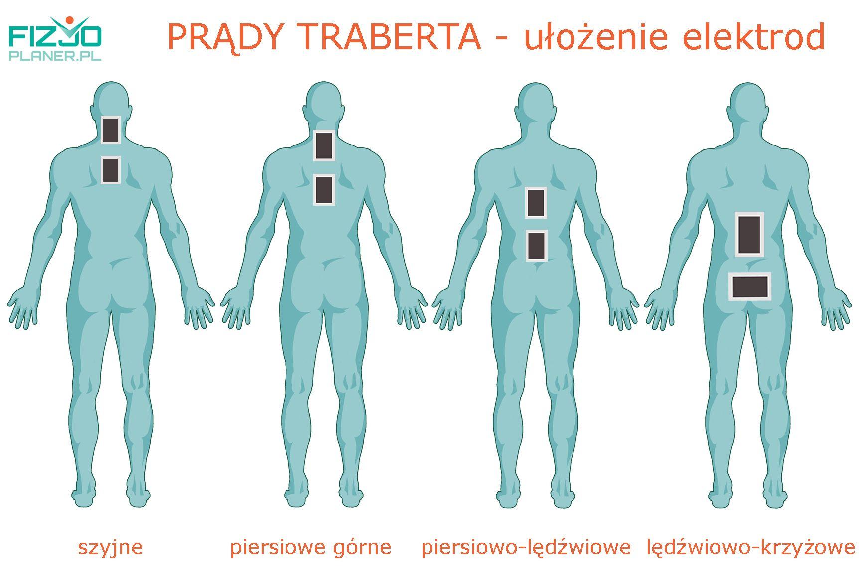 prądy traberta-ułożenie elektrod