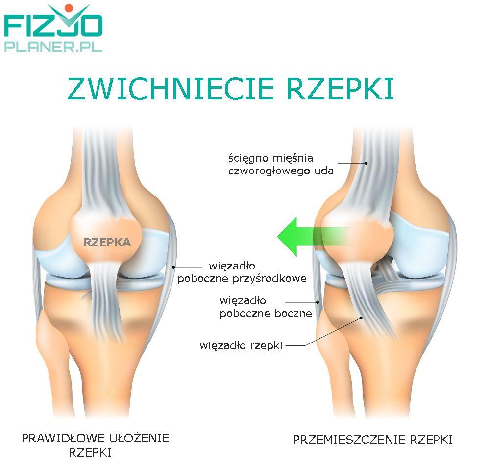 Zwichnięcie rzepki - Fizjoplaner.pl