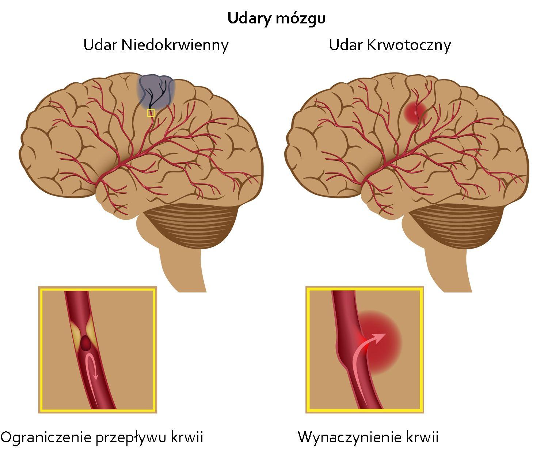 rodzaje udarów mózgu