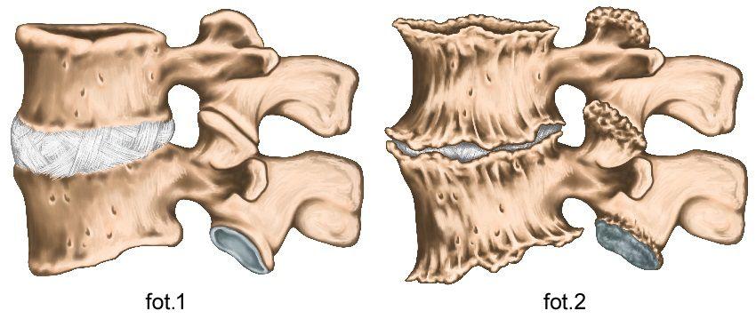 zmiany zwyrodnieniowe kręgosłupa - osteofity