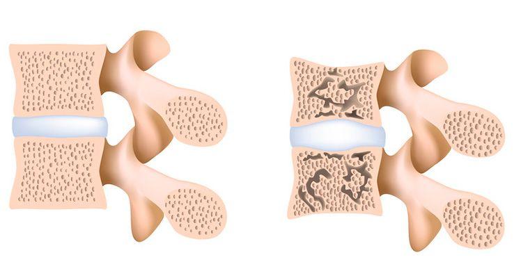 osteoporoza kręgów, kręgosłupa