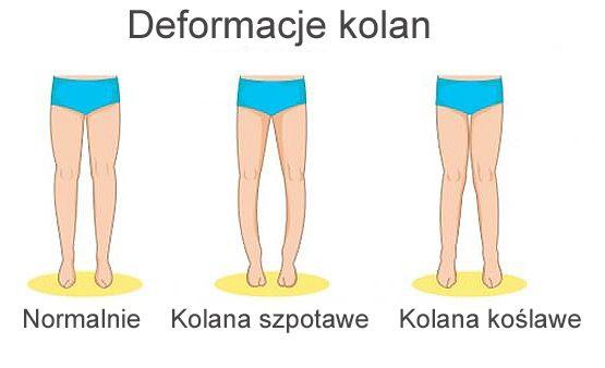 deformacje kolan - kolana koslawe, szpotawe