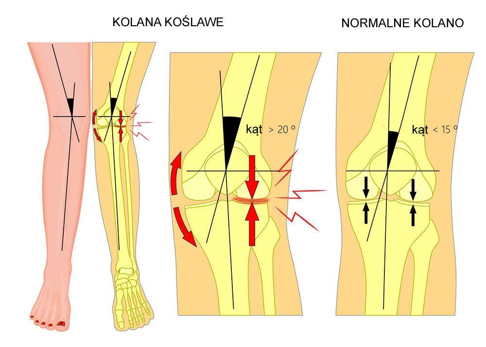 kolana koslawe - anatomia