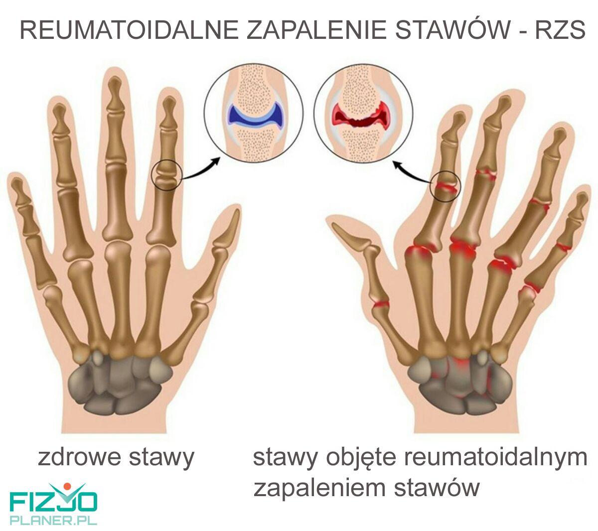 Reumatoidalne zapalenie stawow RZS