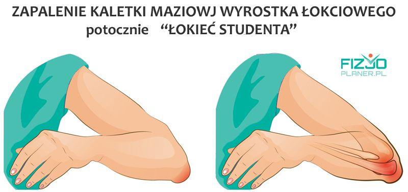 zapalenie kaletki maziowej wyrostka lokciowego lokiec studenta