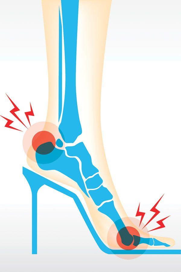 wysokie obcasy obciążenia stopy