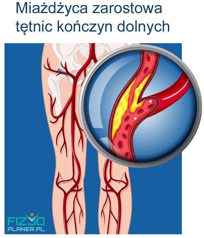 miażdżyca zarostowa tętnic kończyn dolnych