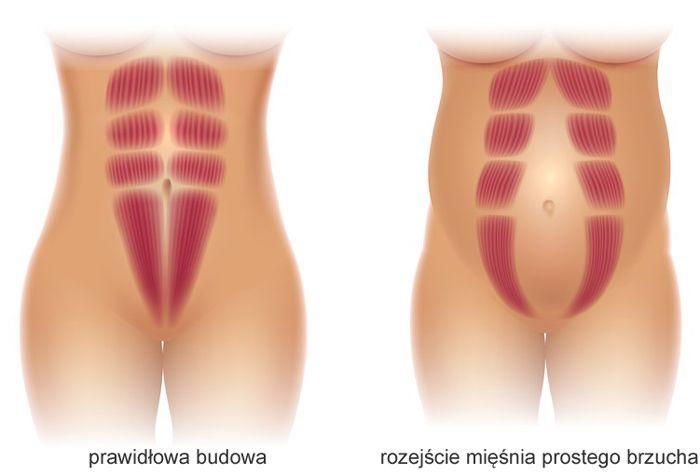 rozejście (rozstęp) mięśnia prostego brzucha