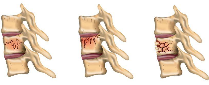 złamania kompresyjne trzonów kręgowych