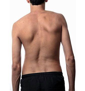 objawy skoliozy - asymetria talii