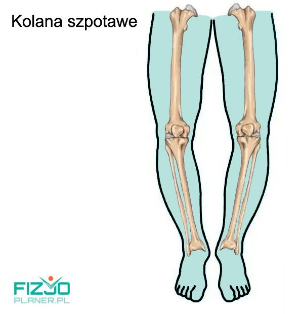 kolana szpotawe