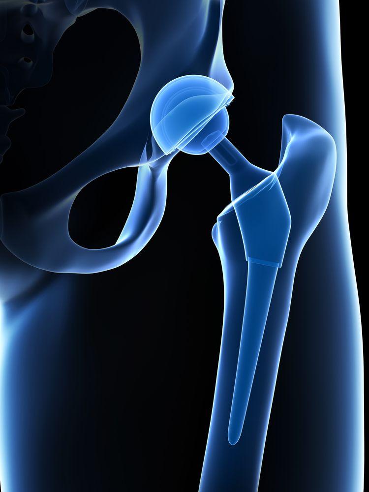 endoproteza stawu biodrowego
