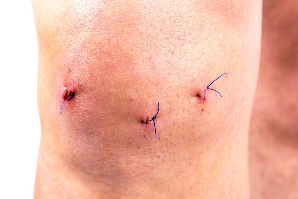 blizna po artroskopii kolana