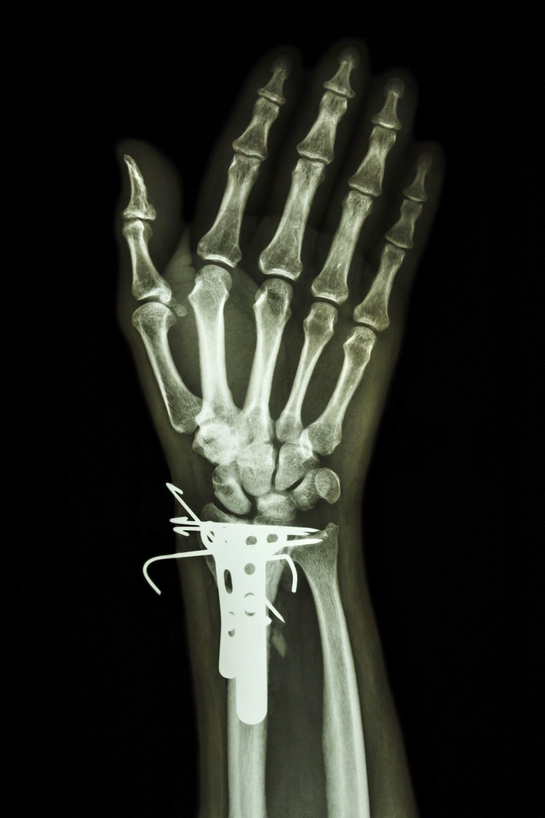 złamanie nadgarstka ustabilizowane płytkami i drutami Kirschnera