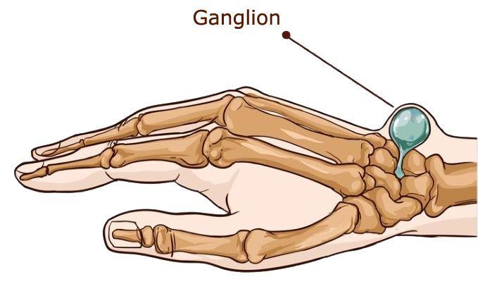 ganglion schemat