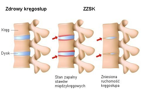ZZSK